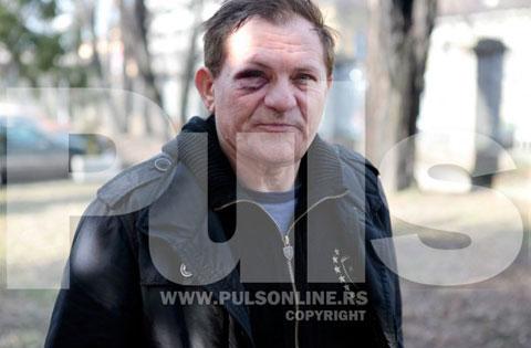Miloš Bojanić завърши в Спешно отделение