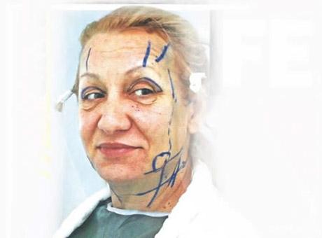 Vesna Zmijanac ходила на изпъване на лицето