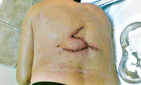 Снимките не лъжат – Miloš Bojanić доказа рака на кожата си!