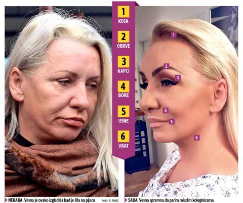 Vesna Zmijanac изгладила лицето